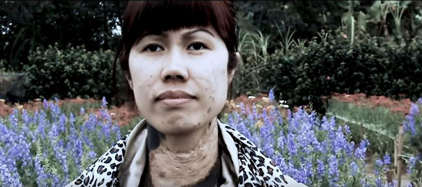 Trailer is Up for <i>Inside This Peace</i> Documentary on Agent Orange Victim